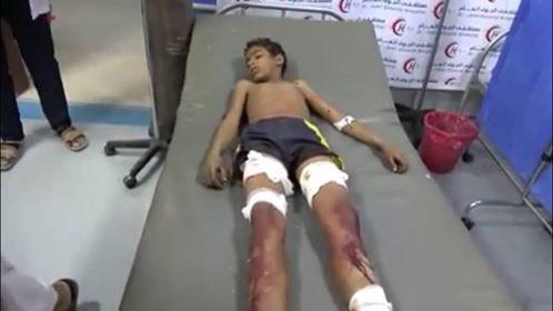 تعز..المليشيا تقصف بالمدفعية مديرية صالة والضحايا أطفال